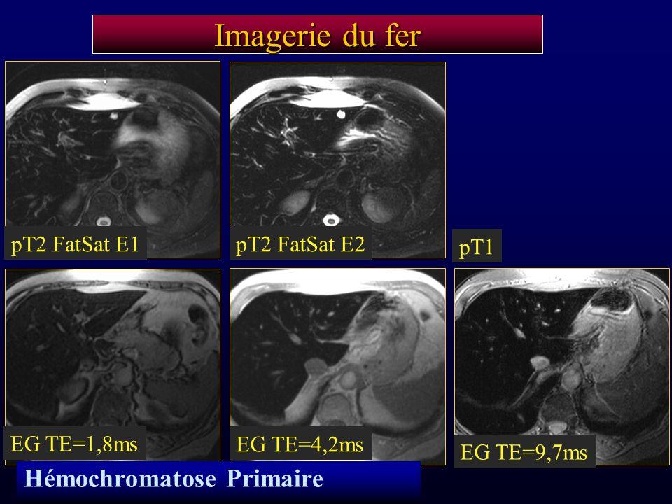 Imagerie du fer Hémochromatose Primaire pT2 FatSat E1 pT2 FatSat E2