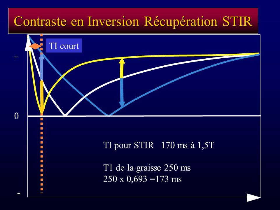 Contraste en Inversion Récupération STIR