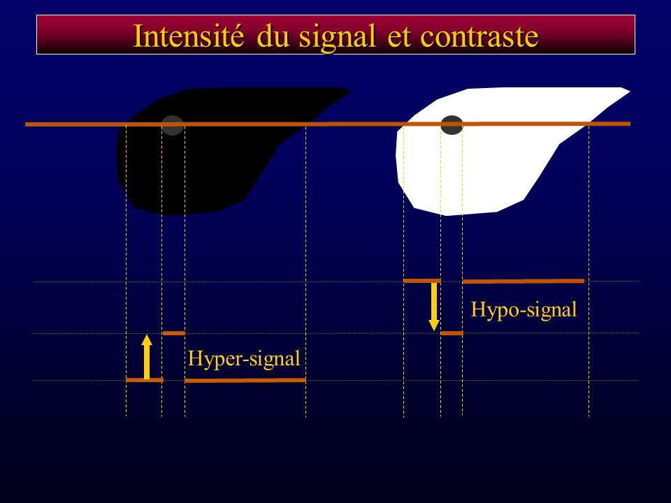 Intensité du signal et contraste