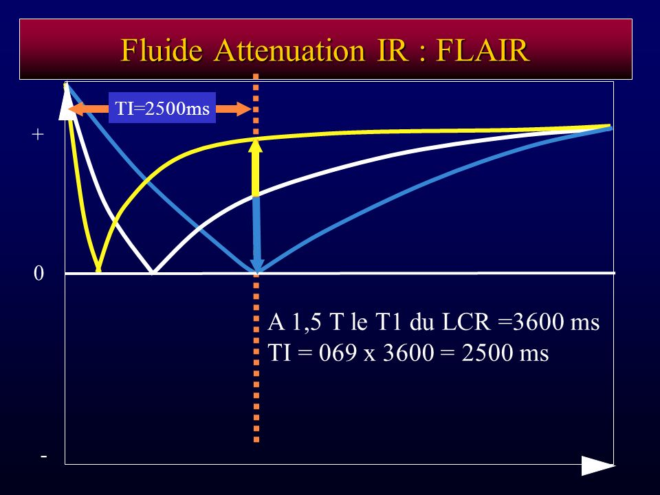 Fluide Attenuation IR : FLAIR
