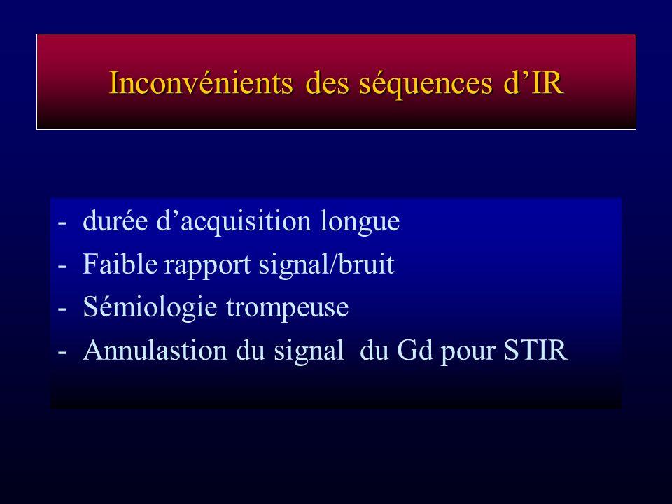 Inconvénients des séquences d'IR