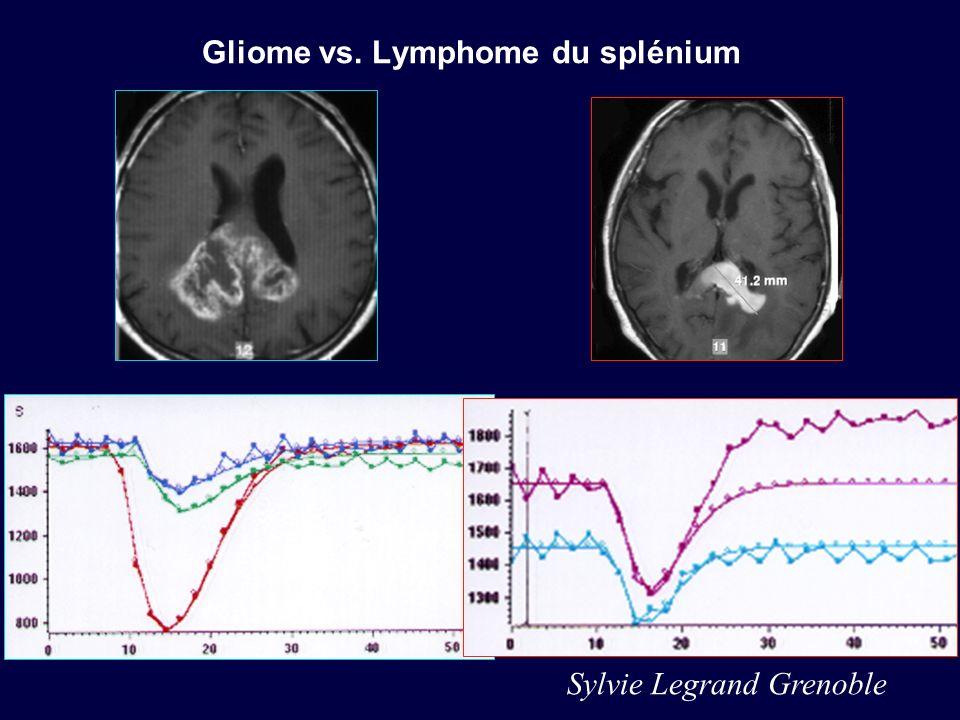 Gliome vs. Lymphome du splénium