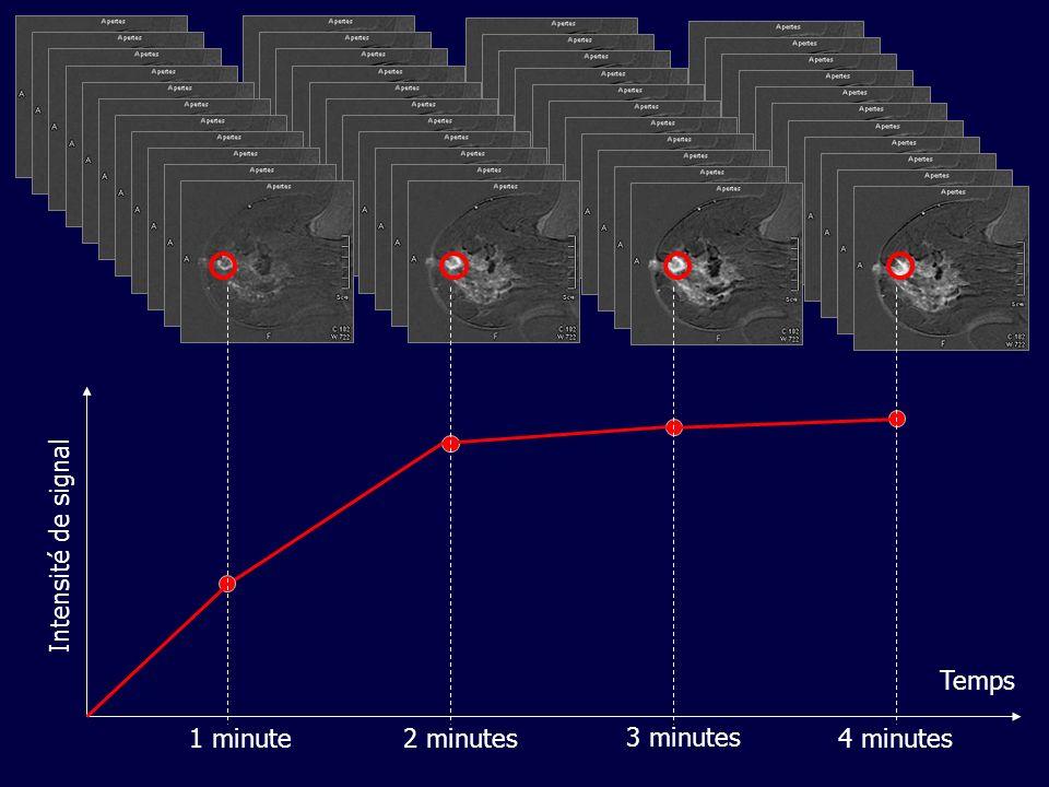 Temps 1 minute 2 minutes 3 minutes Intensité de signal 4 minutes