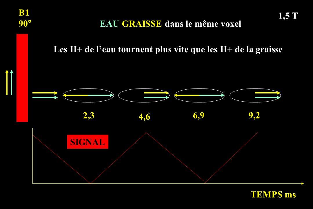 B1 90° 1,5 T. EAU GRAISSE dans le même voxel. Les H+ de l'eau tournent plus vite que les H+ de la graisse.