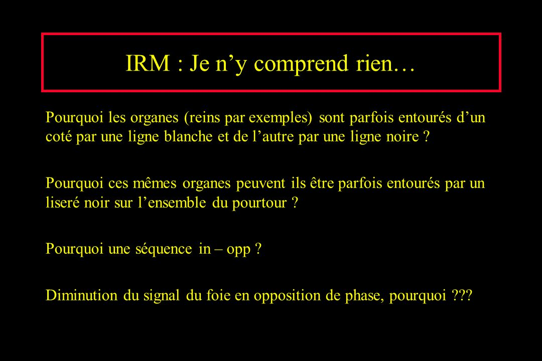 IRM : Je n'y comprend rien…