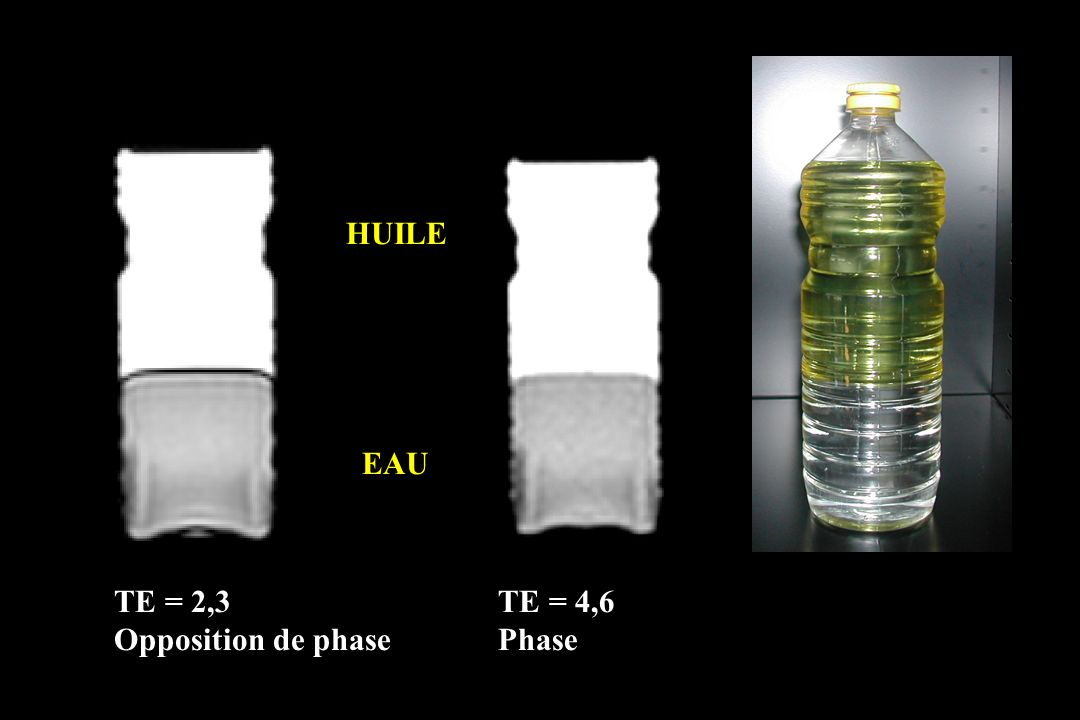 HUILE EAU TE = 2,3 Opposition de phase TE = 4,6 Phase
