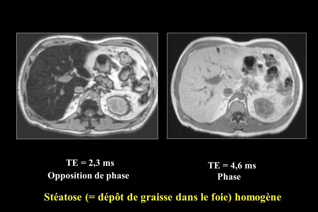 TE = 2,3 ms Stéatose (= dépôt de graisse dans le foie) homogène