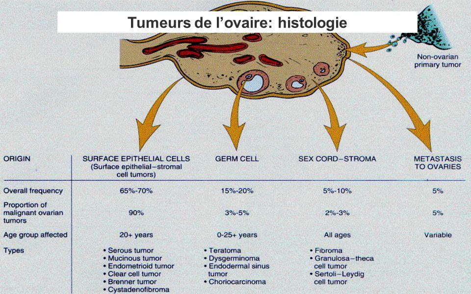 Tumeurs de l'ovaire: histologie