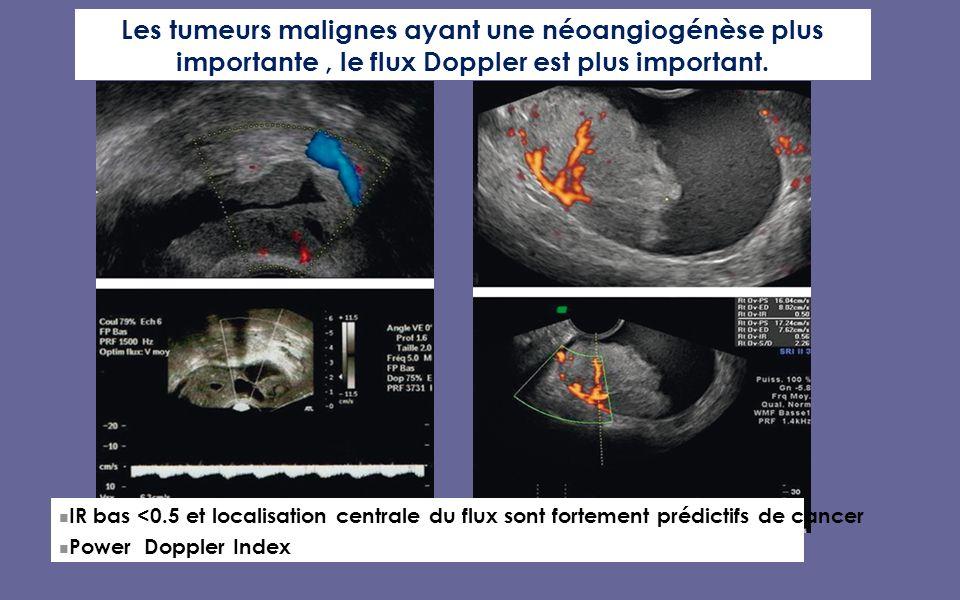 Les tumeurs malignes ayant une néoangiogénèse plus importante , le flux Doppler est plus important.