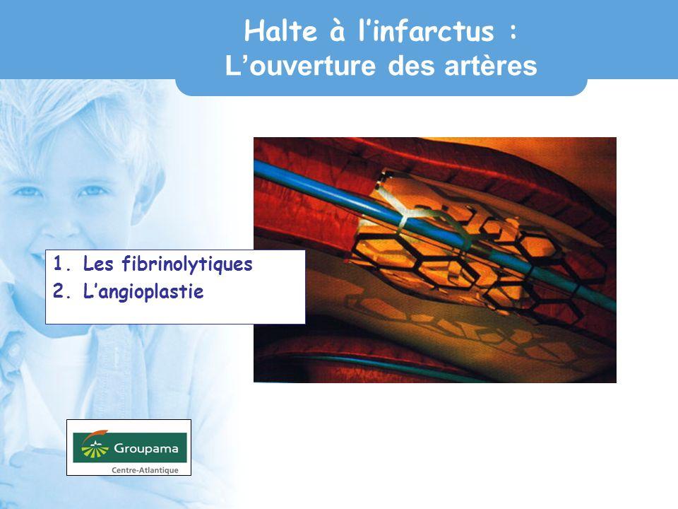 Halte à l'infarctus : L'ouverture des artères