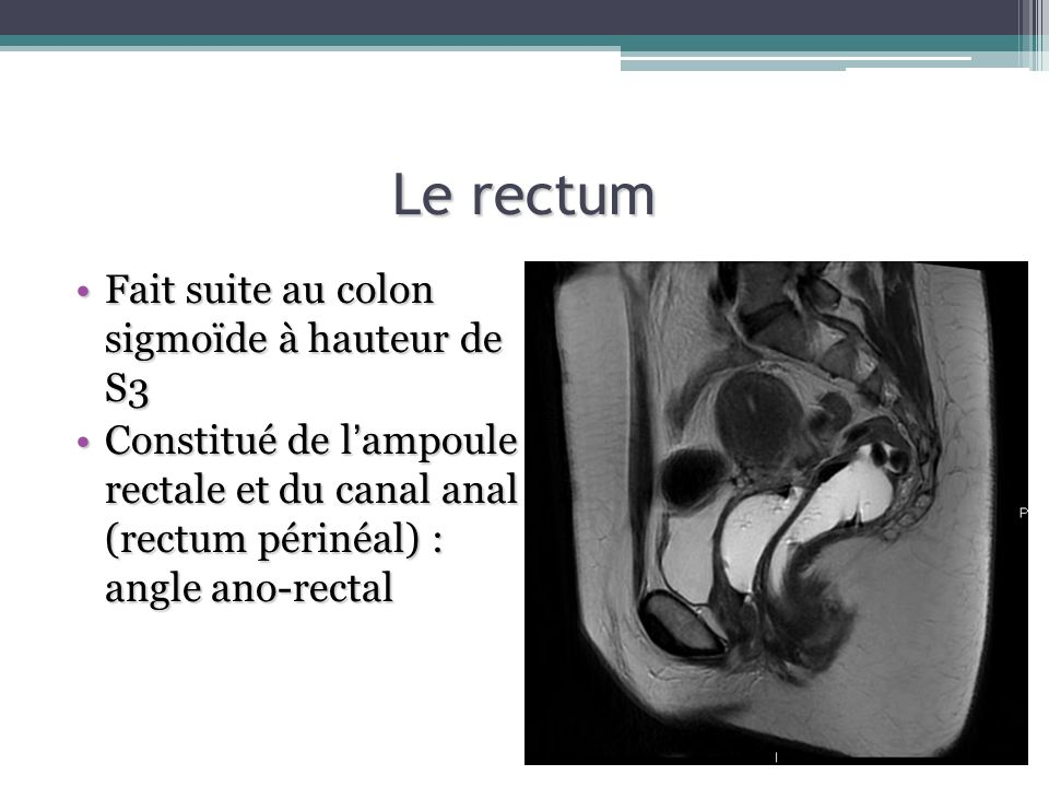 Le rectum Fait suite au colon sigmoïde à hauteur de S3
