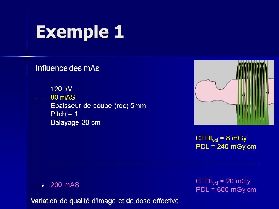 Exemple 1 Influence des mAs 120 kV 80 mAS Epaisseur de coupe (rec) 5mm