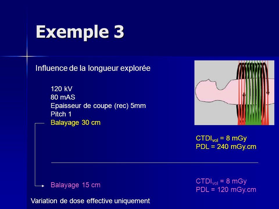 Exemple 3 Influence de la longueur explorée 120 kV 80 mAS