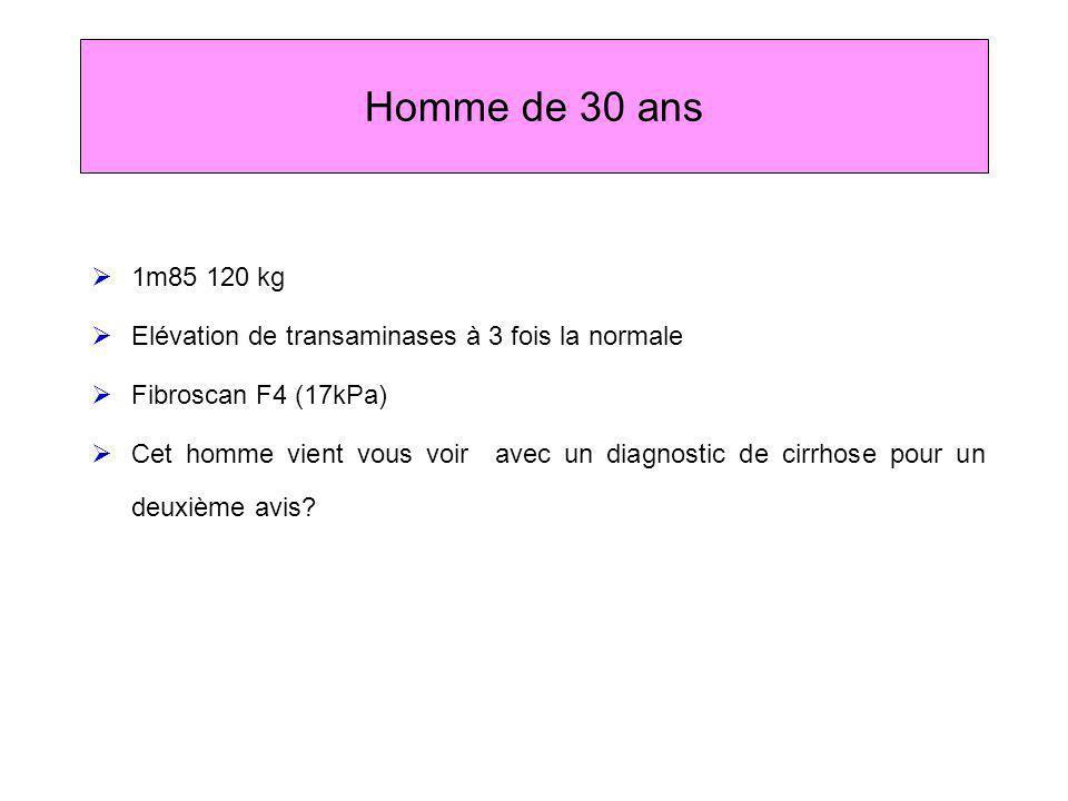 Homme de 30 ans 1m85 120 kg. Elévation de transaminases à 3 fois la normale. Fibroscan F4 (17kPa)