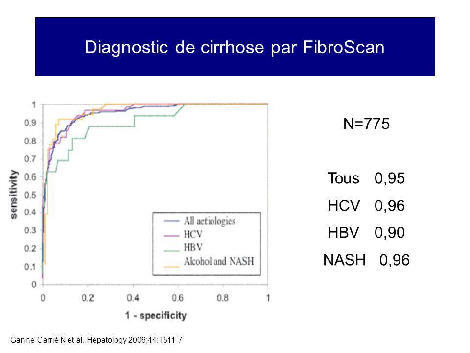 Diagnostic de cirrhose par FibroScan