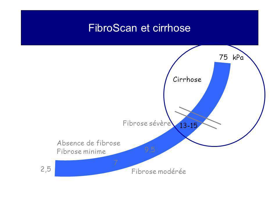 FibroScan et cirrhose 75 kPa Cirrhose Fibrose sévère 13-15