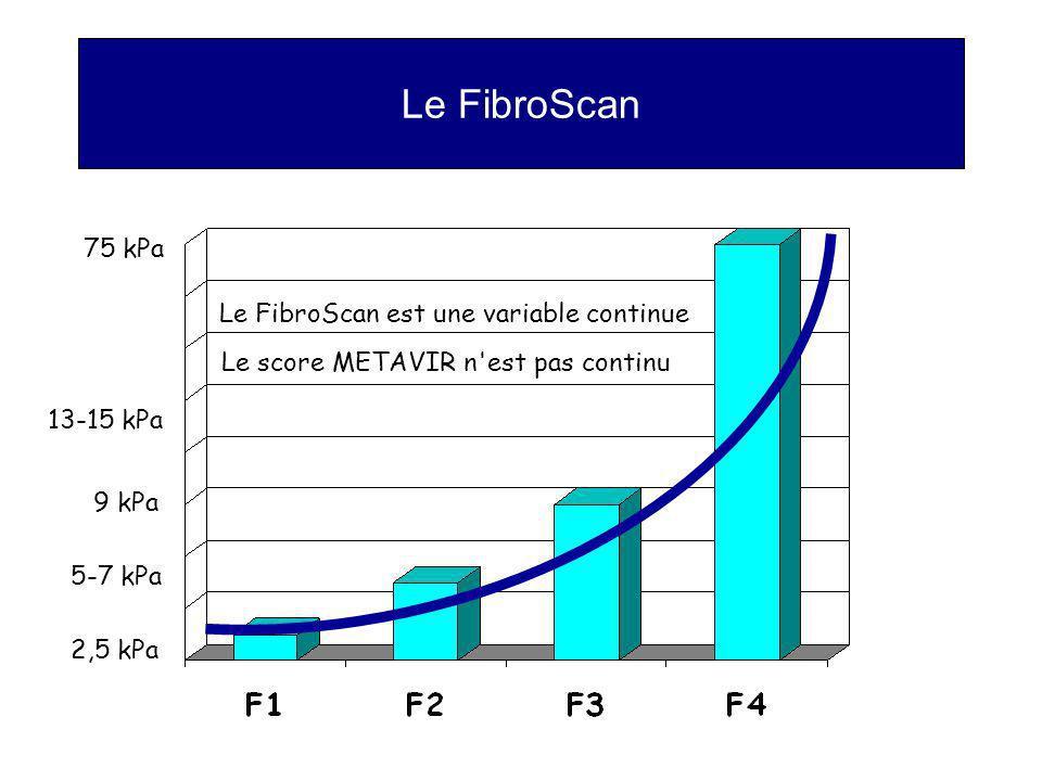 Le FibroScan 75 kPa Le FibroScan est une variable continue