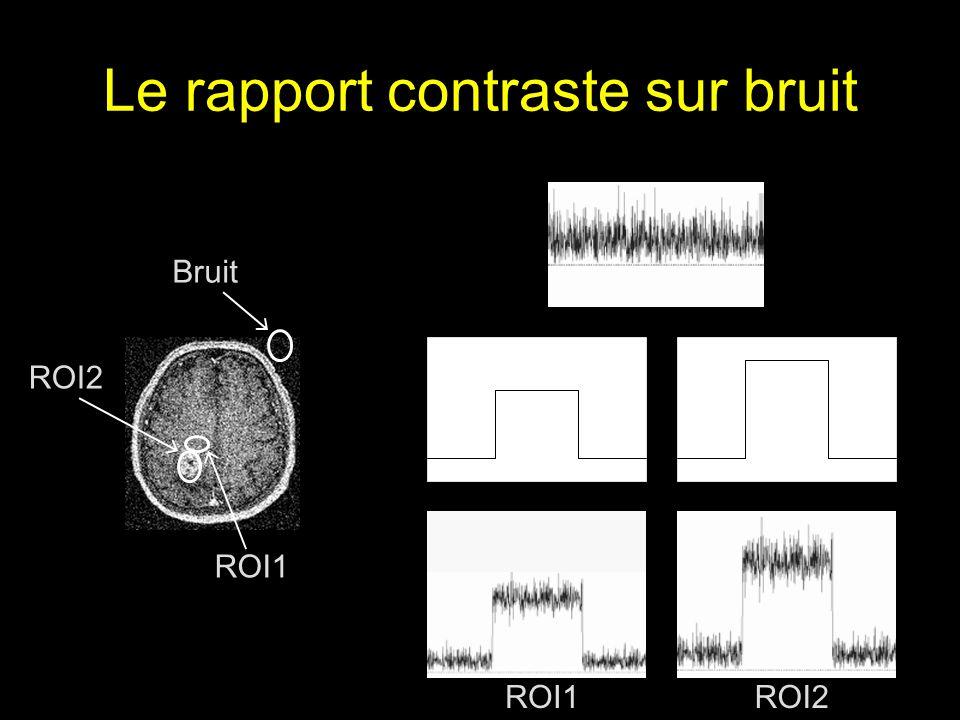 Le rapport contraste sur bruit