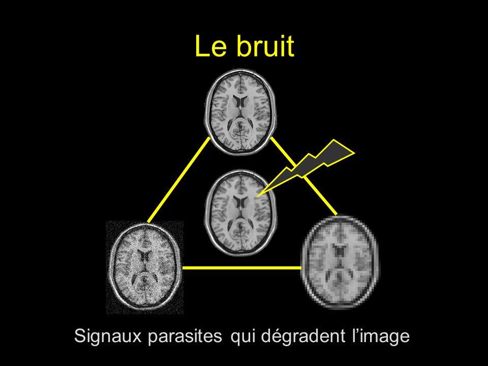 Signaux parasites qui dégradent l'image