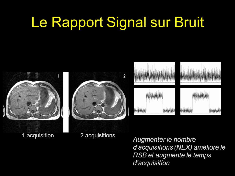 Le Rapport Signal sur Bruit