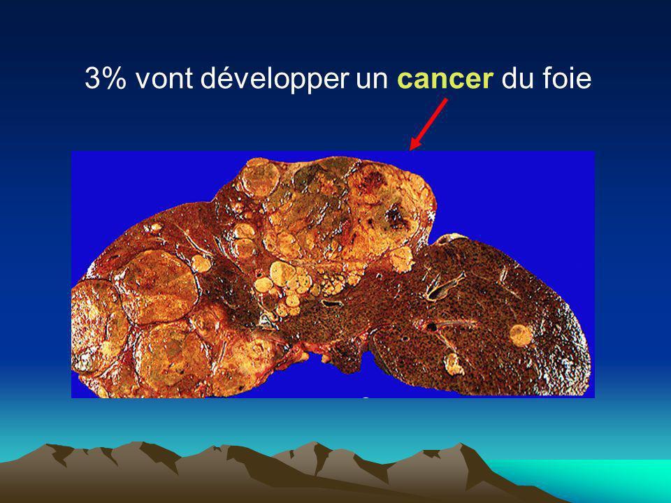 3% vont développer un cancer du foie