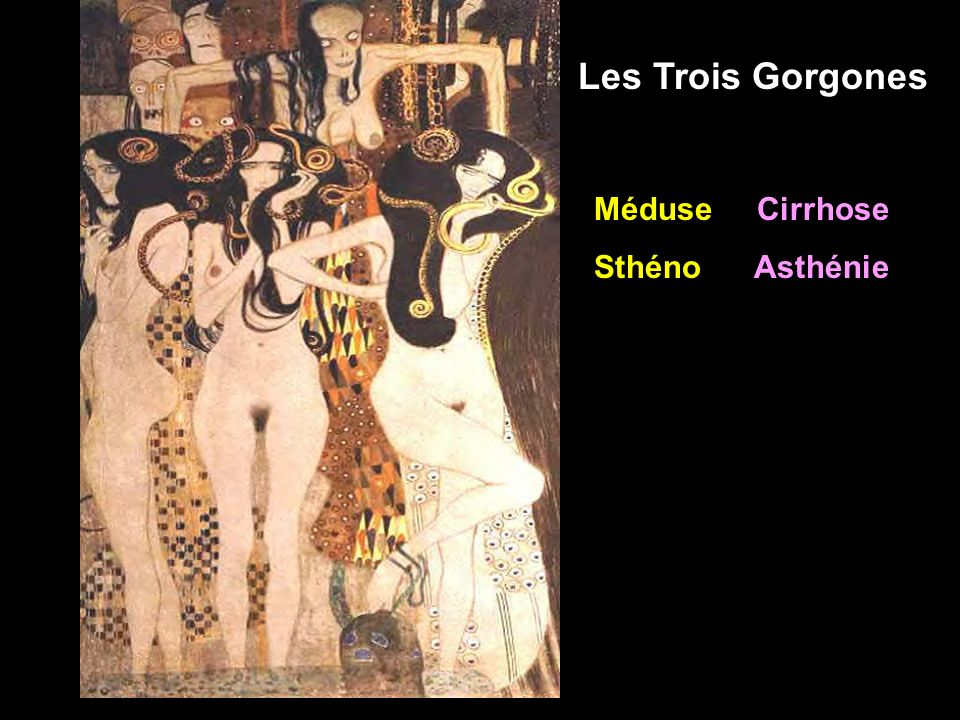 Les Trois Gorgones Méduse Cirrhose Sthéno Asthénie