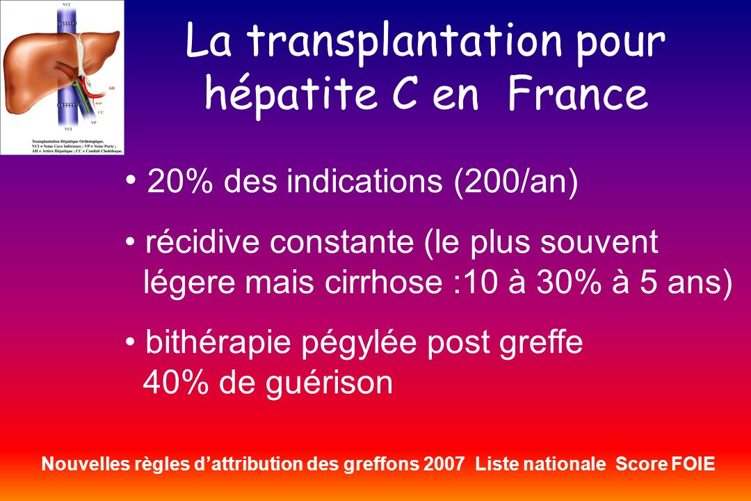 La transplantation pour hépatite C en France
