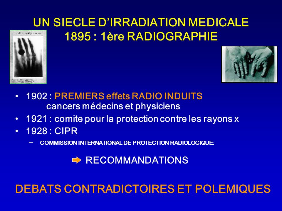 UN SIECLE D'IRRADIATION MEDICALE 1895 : 1ère RADIOGRAPHIE