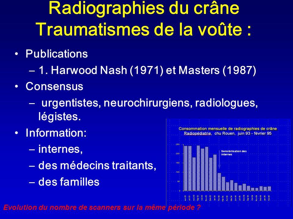 Radiographies du crâne Traumatismes de la voûte :