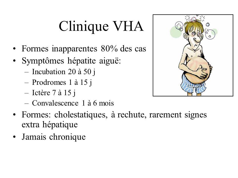 Clinique VHA Formes inapparentes 80% des cas Symptômes hépatite aiguë: