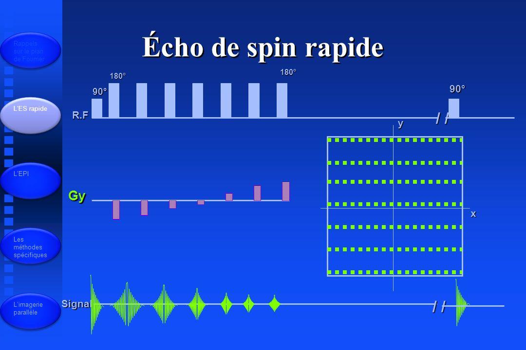 Écho de spin rapide / / / / Gy 90° R.F y x Signal 90° 180° 180°