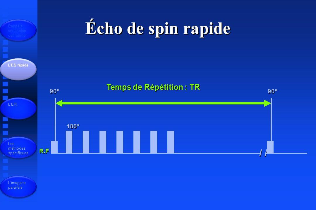 Écho de spin rapide / / Temps de Répétition : TR 90° 90° 180° R.F