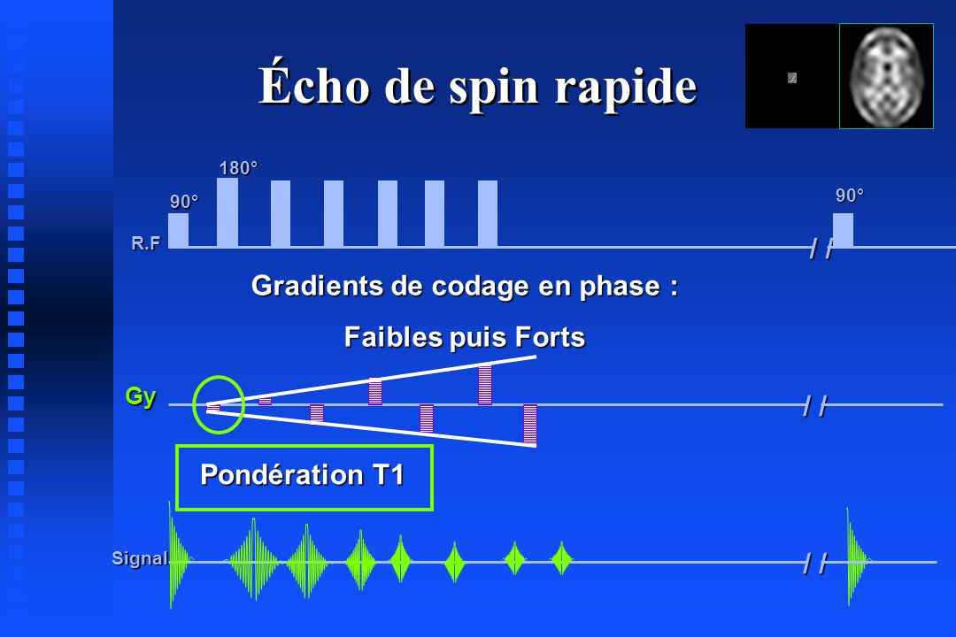 Gradients de codage en phase :