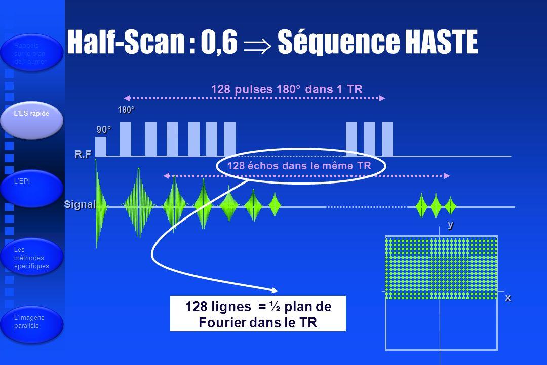128 lignes = ½ plan de Fourier dans le TR