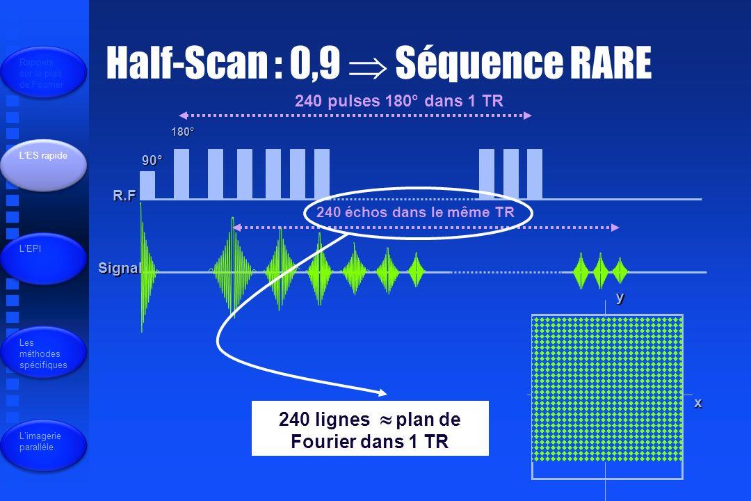 240 lignes  plan de Fourier dans 1 TR