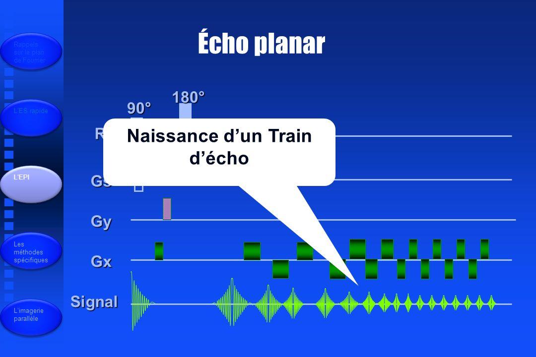 Naissance d'un Train d'écho
