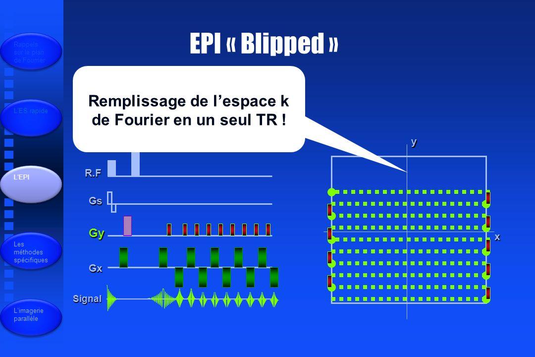 Remplissage de l'espace k de Fourier en un seul TR !