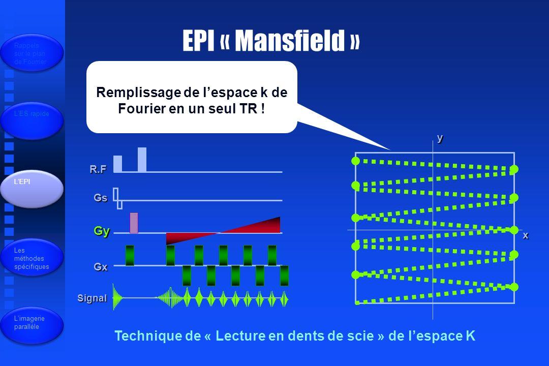 EPI « Mansfield » Remplissage de l'espace k de Fourier en un seul TR !