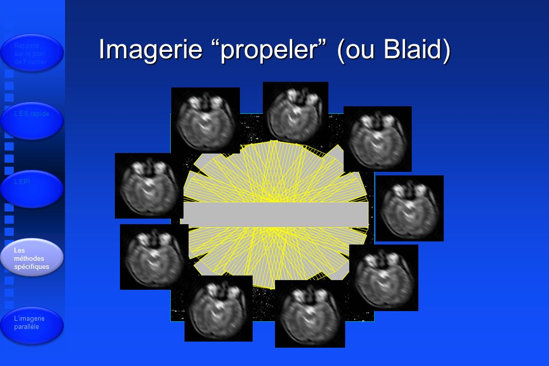 Imagerie propeler (ou Blaid)
