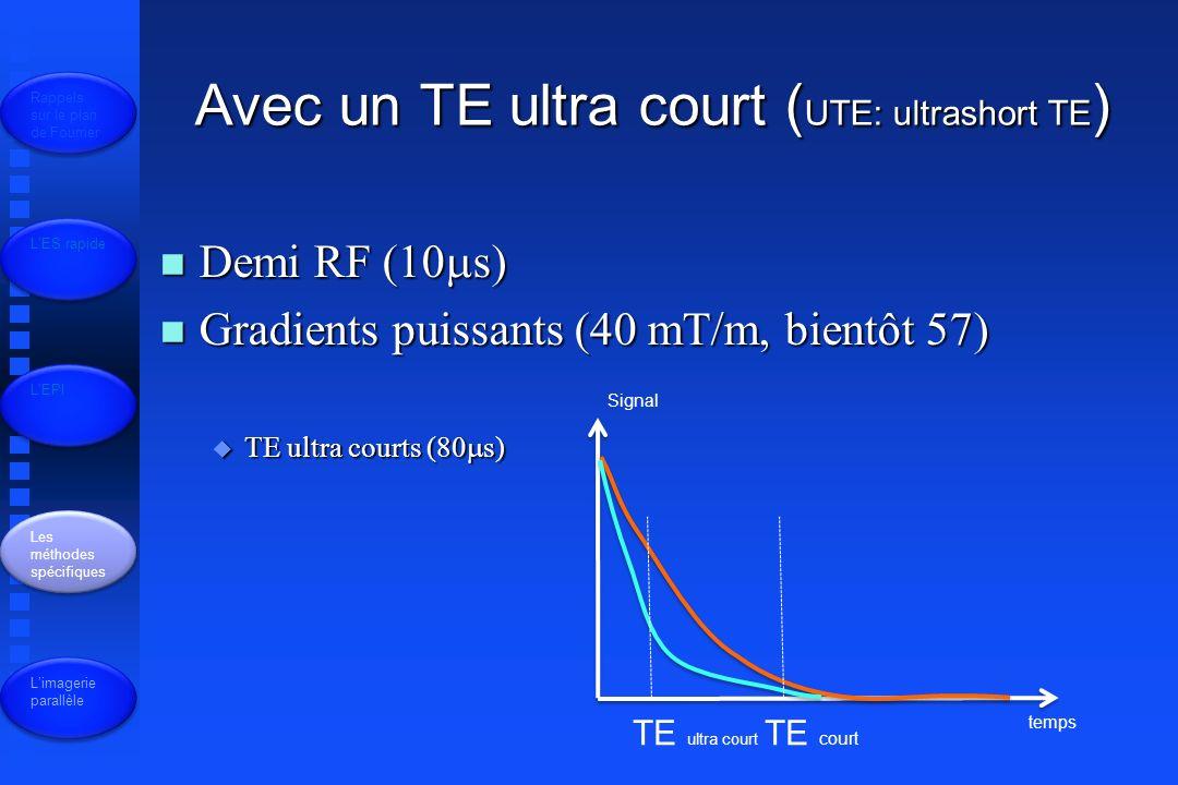 Avec un TE ultra court (UTE: ultrashort TE)
