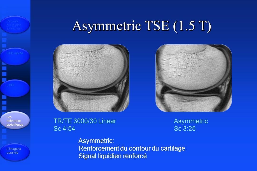 Asymmetric TSE (1.5 T) TR/TE 3000/30 Linear Sc 4:54 Asymmetric Sc 3:25