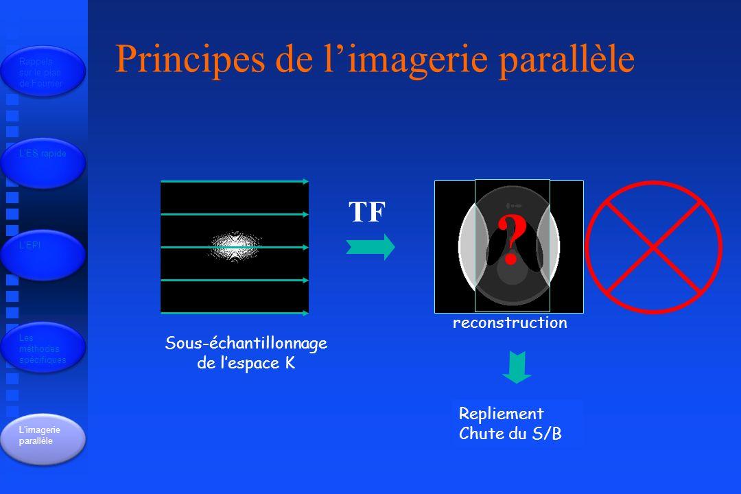 Principes de l'imagerie parallèle TF reconstruction