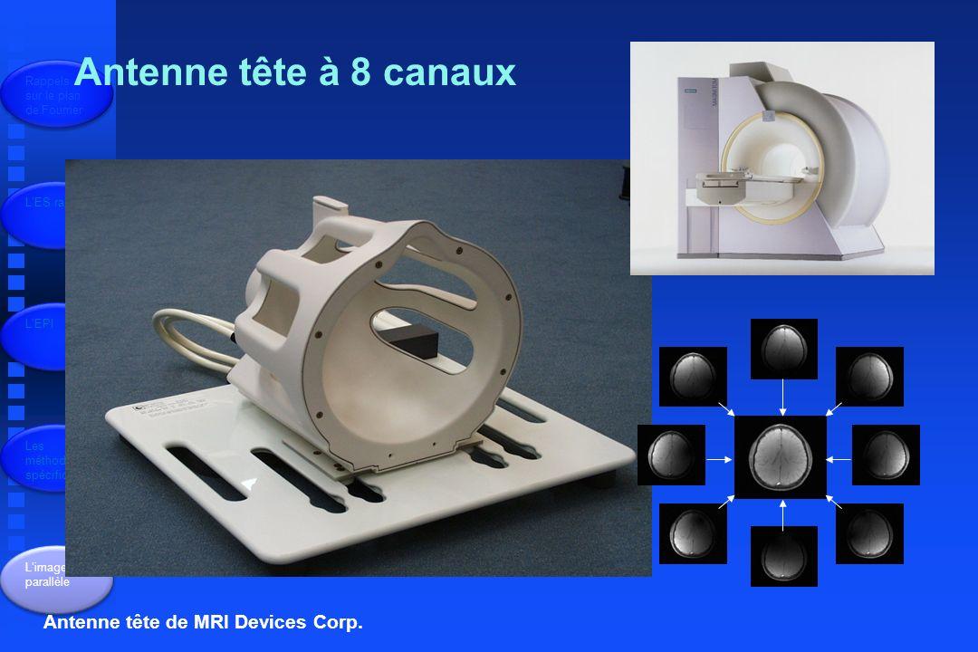 Antenne tête à 8 canaux Antenne tête de MRI Devices Corp.