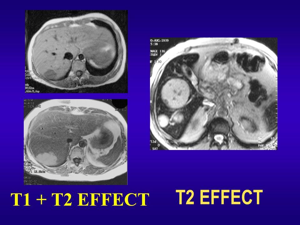 T1 + T2 EFFECT T2 EFFECT 19