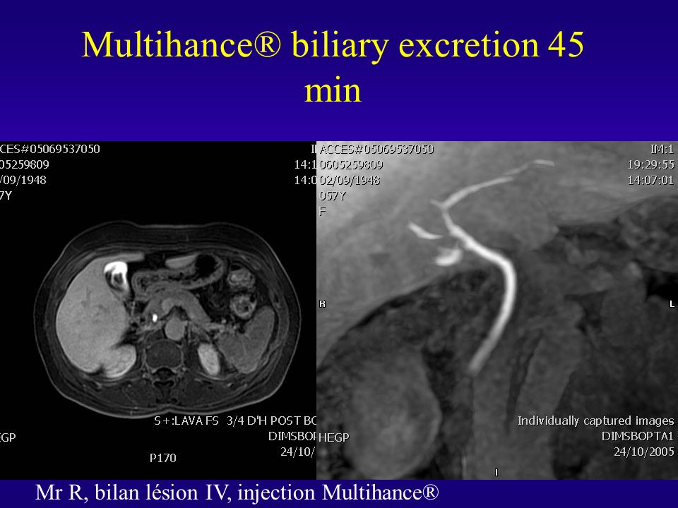 Multihance® biliary excretion 45 min