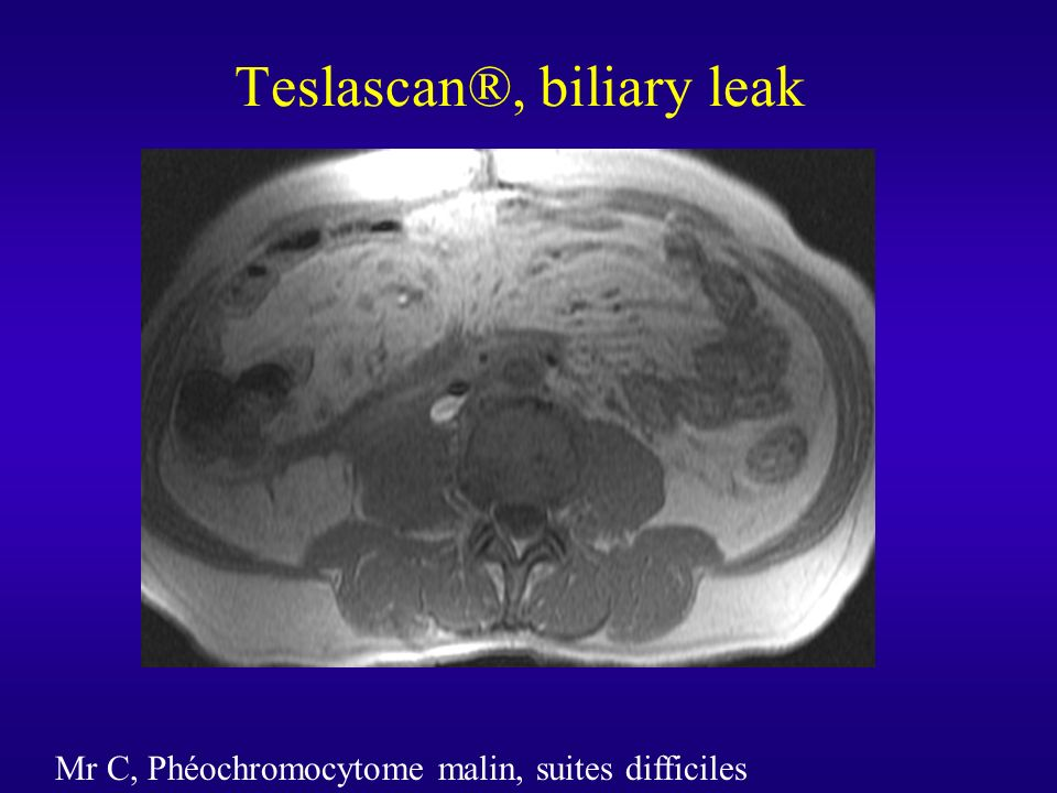 Teslascan®, biliary leak