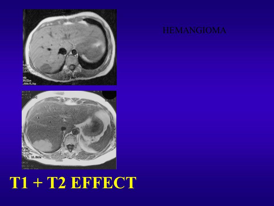 HEMANGIOMA T1 + T2 EFFECT 69