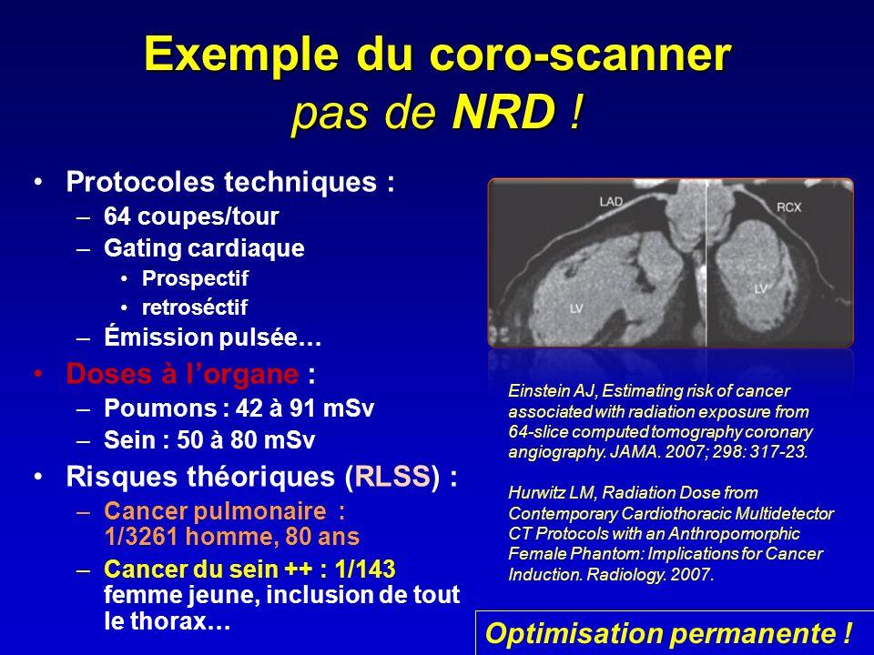 Exemple du coro-scanner pas de NRD !