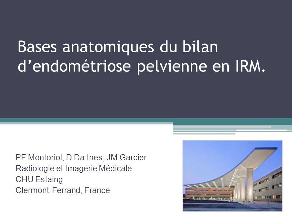 Bases anatomiques du bilan d'endométriose pelvienne en IRM.