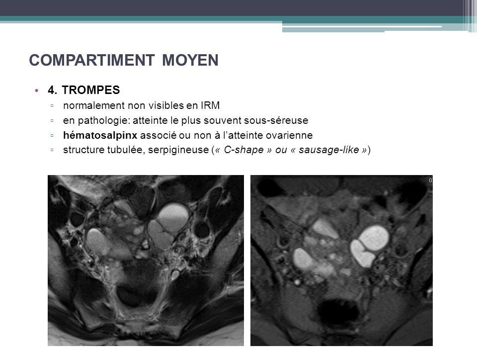 COMPARTIMENT MOYEN 4. TROMPES normalement non visibles en IRM